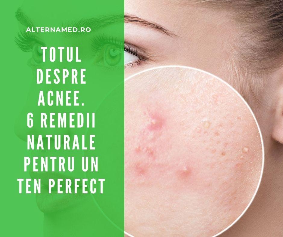 TRATAMENT ACNEE - 6 remedii naturale pentru un TEN PERFECT